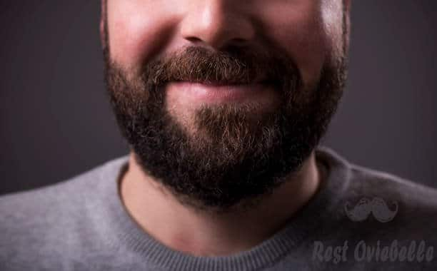 How Can I Prevent Beard Dandruff From Coming Back?