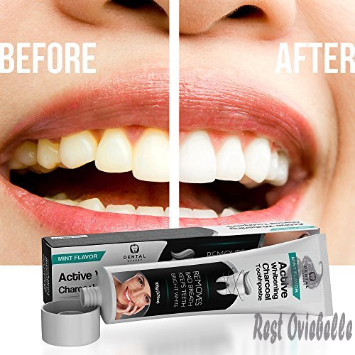 Dental Expert Activated Charcoal Teeth Whitening Toothpaste 1