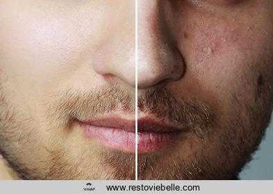 Things You Need Consider When Buying Best Acne Treatment For Men