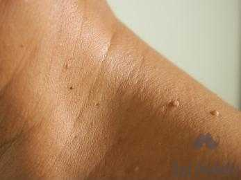 natural ways to remove skin tags